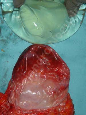 Contractura capsular de implantes mamarios,Calcificación de la cápsula de los implantes mamarios,Malposición de implantes mamarios desplazados,Implantes mamarios excesivamente altos,Visibilidad palpabilidad de implantes mamarios,Implantes mamarios rotos,Implantes mamarios bizcos,Pechos moderadamente caídos descolgados,Mamas péndulas,Escote ancho de implantes de pechos excesivamente separados,Escote ancho de pechos excesivamente separados,Implantes mamarios demasiado estrechos,Efecto en cascada de agua de implantes mamarios,Capsulectomía