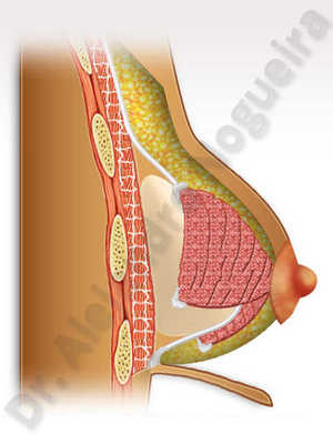 Areolas grandes,Pechos tuberosos,Reducción areolar,Mamoplastia tuberosa