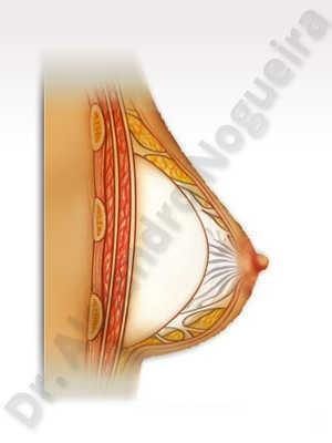 Deformidad en mama dinámica de implantes mamarios,Pseudoptosis por bottoming out o desfondamiento de implantes mamarios,Contractura capsular de implantes mamarios,Malposición de implantes mamarios desplazados,Deformidad en doble burbuja de implantes mamarios,Movimiento excesivo de implantes mamarios,Hematoma de implantes mamarios,Infección de implantes mamarios,Deslizamiento lateral de implantes mamarios,Implantes mamarios excesivamente altos,Seroma de implantes mamarios,Implantes mamarios excesivamente laterales,Implantes mamarios rotos,Pechos vacíos,Pechos pequeños,Escote ancho de implantes de pechos excesivamente separados,Efecto en cascada de agua de implantes mamarios,Forma anatómica,Capsulectomía,Tamaño y forma hechos a medida,Bolsillo en plano dual,Tamaño extra grande,Forma redonda,Bolsillo en plano subfascial