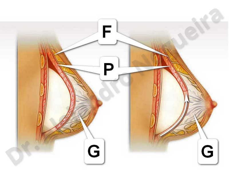 Deformidad en mama dinámica de implantes mamarios,Pseudoptosis por bottoming out o desfondamiento de implantes mamarios,Contractura capsular de implantes mamarios,Malposición de implantes mamarios desplazados,Deformidad en doble burbuja de implantes mamarios,Movimiento excesivo de implantes mamarios,Hematoma de implantes mamarios,Infección de implantes mamarios,Deslizamiento lateral de implantes mamarios,Implantes mamarios excesivamente altos,Seroma de implantes mamarios,Implantes mamarios excesivamente laterales,Implantes mamarios rotos,Pechos vacíos,Pechos pequeños,Escote ancho de implantes de pechos excesivamente separados,Efecto en cascada de agua de implantes mamarios,Forma anatómica,Capsulectomía,Tamaño y forma hechos a medida,Bolsillo en plano dual,Tamaño extra grande,Forma redonda,Bolsillo en plano subfascial - photo 1