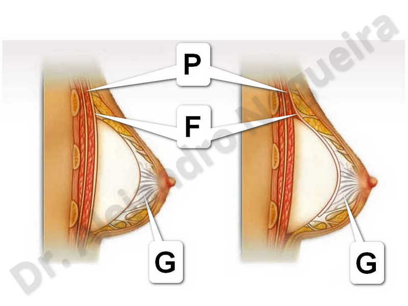 Deformidad en mama dinámica de implantes mamarios,Pseudoptosis por bottoming out o desfondamiento de implantes mamarios,Contractura capsular de implantes mamarios,Malposición de implantes mamarios desplazados,Deformidad en doble burbuja de implantes mamarios,Movimiento excesivo de implantes mamarios,Hematoma de implantes mamarios,Infección de implantes mamarios,Deslizamiento lateral de implantes mamarios,Implantes mamarios excesivamente altos,Seroma de implantes mamarios,Implantes mamarios excesivamente laterales,Implantes mamarios rotos,Pechos vacíos,Pechos pequeños,Escote ancho de implantes de pechos excesivamente separados,Efecto en cascada de agua de implantes mamarios,Forma anatómica,Capsulectomía,Tamaño y forma hechos a medida,Bolsillo en plano dual,Tamaño extra grande,Forma redonda,Bolsillo en plano subfascial - photo 2