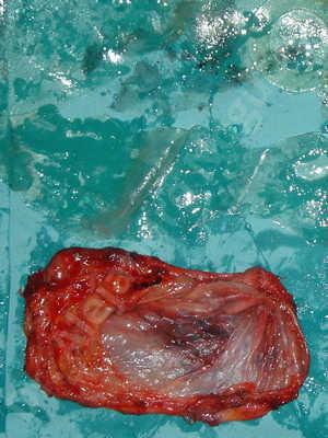 Contractura capsular de implantes mamarios,Calcificación de la cápsula de los implantes mamarios,Malposición de implantes mamarios desplazados,Implantes mamarios excesivamente altos,Implantes mamarios rotos,Elevación de pecho fallida,Pechos moderadamente caídos descolgados,Efecto en cascada de agua de implantes mamarios,Capsulectomía
