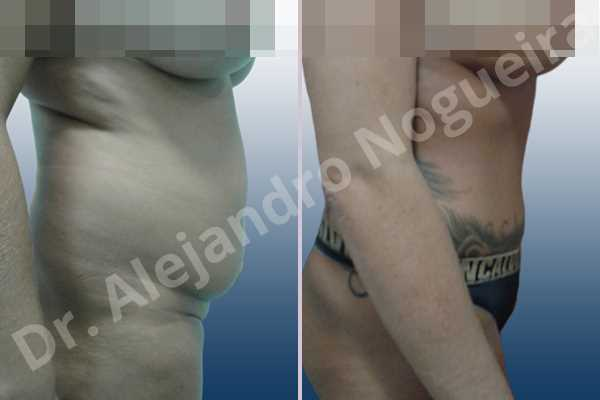 Before & After Case 2BXLL8H4