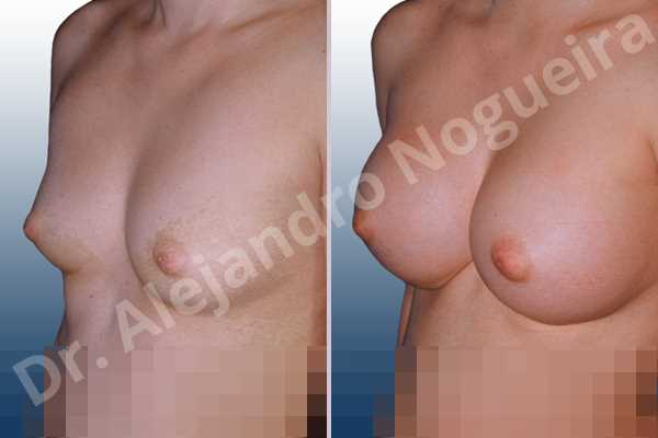 Narrow breasts,Small breasts,Sunken chest,Anatomical shape,Inframammary incision,Subfascial pocket plane - photo 1