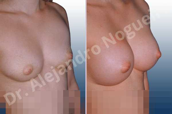 Narrow breasts,Small breasts,Sunken chest,Anatomical shape,Inframammary incision,Subfascial pocket plane - photo 2