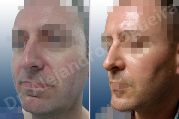 Before & After Case 2EM22QJ4