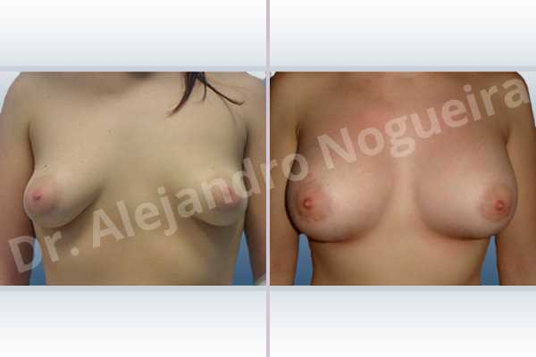 Asymmetric breasts,Cross eyed breasts,Empty breasts,Large areolas,Lateral breasts,Mildly saggy droopy breasts,Moderately saggy droopy breasts,Small breasts,Too far apart wide cleavage breasts,Tuberous breasts,Wide scars,Anatomical shape,Areola reduction,Circumareolar incision,Subfascial pocket plane,Tuberous mammoplasty - photo 1