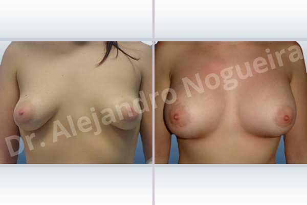 Before & After Case 2FDFJL64