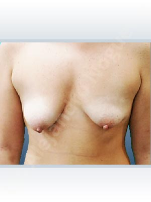 Asymmetric breasts,Empty breasts,Moderately saggy droopy breasts,Narrow breasts,Pendulous breasts,Severely saggy droopy breasts,Small breasts,Wide breasts,Lower hemi periareolar incision,Round shape,Subfascial pocket plane,Tuberous mammoplasty