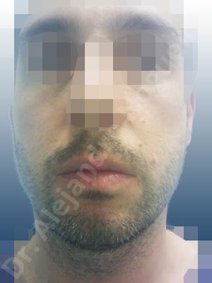 Small chin,Weak chin,Horizontal chin osteotomy,One dimensional genioplasty,Osseous chin advancement
