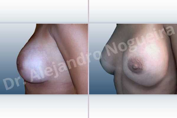 Before & After Case 2PVTVUCX