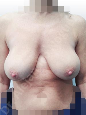 Asymmetric breasts,Breast implants bottoming out,Breast implants capsular contracture,Breast implants capsule calcification,Breast implants displacement malposition,Breast implants excessive movement,Breast implants lateral slide,Breast implants rippling,Breast implants visibility palpability,Broken breast implants,Empty breasts,Lateral breasts,Pendulous breasts,Severely saggy droopy breasts,Skinny breasts,Too far apart wide cleavage breast implants,Too narrow breast implants,Waterfall effect breast implants,Anatomical shape,Capsulectomy,Lollipop incision,Subfascial pocket plane,Superior pedicle