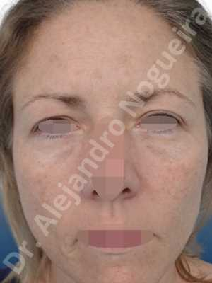 Deep nasolabial folds,Droopy cheeks,Droopy eyebrows,Droopy face,Droopy forehead,Saggy upper eyelids,Short temporal incisions supraperiosteal extended lift of the upper two thirds of the face,Upper eyelid skin and muscle resection