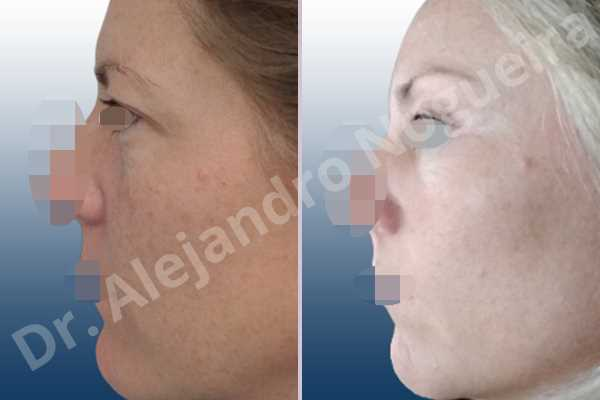 Deep nasolabial folds,Droopy cheeks,Droopy eyebrows,Droopy face,Droopy forehead,Saggy upper eyelids,Short temporal incisions supraperiosteal extended lift of the upper two thirds of the face,Upper eyelid skin and muscle resection - photo 2