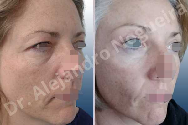 Deep nasolabial folds,Droopy cheeks,Droopy eyebrows,Droopy face,Droopy forehead,Saggy upper eyelids,Short temporal incisions supraperiosteal extended lift of the upper two thirds of the face,Upper eyelid skin and muscle resection - photo 5