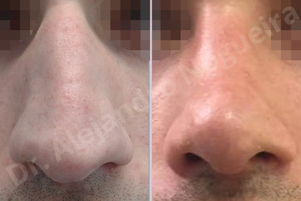 Alar rim retraction,Asymmetric nose,Asymmetric tip,Bifid columella,Bifid tip,Concave lateral cruras,Congenital nose,Crooked nose,Crooked tip,Dorsum hump,Dorsum ridges,Droopy tip,Dynamic alar flaring,Large alar cartilages,Large nose,Long nose,Long septum,Long upper lateral cartilages,Mediterranean nose,Narrow dorsum,Narrow nose,Overprojected tip,Pinched middle vault,Pinched nose,Plunging tip deformity,Pointy tip,Posttraumatic nose,Rhomboid dorsum,Sunken columella,Thin skin nose,Tip bossae,Columella strut graft,Custom made tip graft,Dorsum hump resection,Intercrural columella plasty sutures,Interdomal tip plasty sutures,Lateral cruras cephalic resection,Lateral cruras cross location,Lateral cruras plasty sutures,Lateral cruras repositioning,Lateral cruras reverse plasty,Lateral cruras shortening resection,Medial cruras shortening resection,Nasal bones osteotomies,Open approach incision,Spreader graft,Temporalis fascia graft harvesting,Tongue in groove columella setback,Transdomal tip plasty sutures,Triangular cartilages caudal resection - photo 2