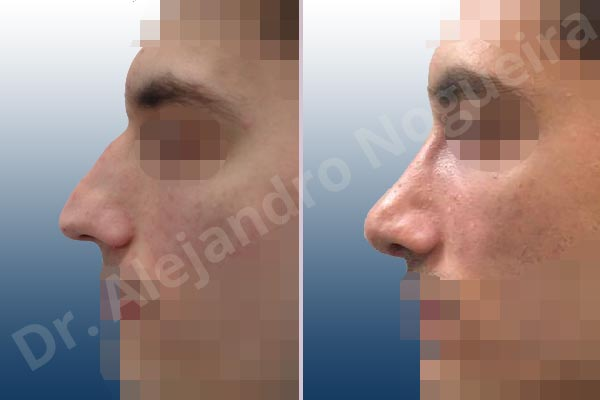 Alar rim retraction,Asymmetric nose,Asymmetric tip,Bifid columella,Bifid tip,Concave lateral cruras,Congenital nose,Crooked nose,Crooked tip,Dorsum hump,Dorsum ridges,Droopy tip,Dynamic alar flaring,Large alar cartilages,Large nose,Long nose,Long septum,Long upper lateral cartilages,Mediterranean nose,Narrow dorsum,Narrow nose,Overprojected tip,Pinched middle vault,Pinched nose,Plunging tip deformity,Pointy tip,Posttraumatic nose,Rhomboid dorsum,Sunken columella,Thin skin nose,Tip bossae,Columella strut graft,Custom made tip graft,Dorsum hump resection,Intercrural columella plasty sutures,Interdomal tip plasty sutures,Lateral cruras cephalic resection,Lateral cruras cross location,Lateral cruras plasty sutures,Lateral cruras repositioning,Lateral cruras reverse plasty,Lateral cruras shortening resection,Medial cruras shortening resection,Nasal bones osteotomies,Open approach incision,Spreader graft,Temporalis fascia graft harvesting,Tongue in groove columella setback,Transdomal tip plasty sutures,Triangular cartilages caudal resection - photo 3