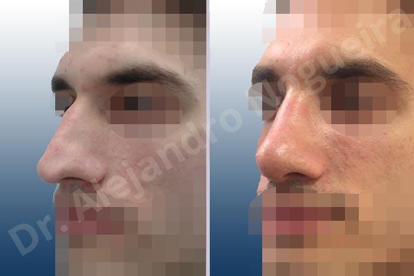 Before & After Case 2YJAITMI