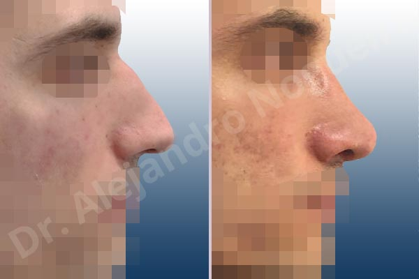 Alar rim retraction,Asymmetric nose,Asymmetric tip,Bifid columella,Bifid tip,Concave lateral cruras,Congenital nose,Crooked nose,Crooked tip,Dorsum hump,Dorsum ridges,Droopy tip,Dynamic alar flaring,Large alar cartilages,Large nose,Long nose,Long septum,Long upper lateral cartilages,Mediterranean nose,Narrow dorsum,Narrow nose,Overprojected tip,Pinched middle vault,Pinched nose,Plunging tip deformity,Pointy tip,Posttraumatic nose,Rhomboid dorsum,Sunken columella,Thin skin nose,Tip bossae,Columella strut graft,Custom made tip graft,Dorsum hump resection,Intercrural columella plasty sutures,Interdomal tip plasty sutures,Lateral cruras cephalic resection,Lateral cruras cross location,Lateral cruras plasty sutures,Lateral cruras repositioning,Lateral cruras reverse plasty,Lateral cruras shortening resection,Medial cruras shortening resection,Nasal bones osteotomies,Open approach incision,Spreader graft,Temporalis fascia graft harvesting,Tongue in groove columella setback,Transdomal tip plasty sutures,Triangular cartilages caudal resection - photo 7