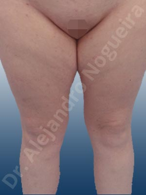 Thigh gap flab,Tumescent liposuction