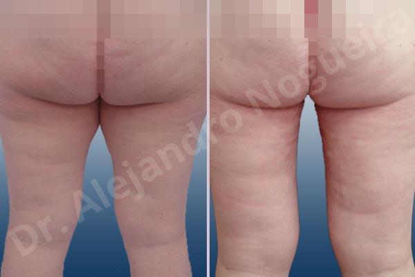 Thigh gap flab,Tumescent liposuction - photo 2