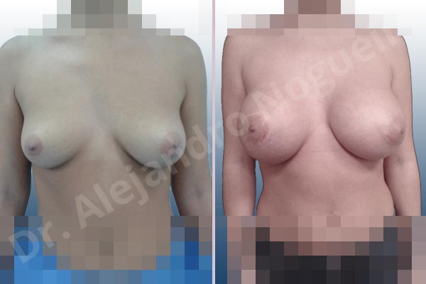 Before & After Case 36BCR9IU