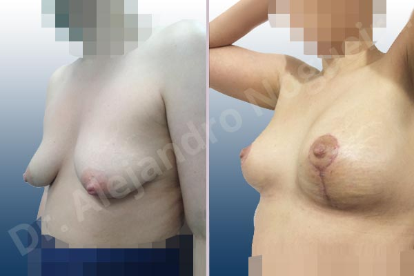 Asymmetric breasts,Cross eyed breasts,Empty breasts,Moderately saggy droopy breasts,Narrow breasts,Small breasts,Tuberous breasts,Anatomical shape,Lollipop incision,Subfascial pocket plane,Superior pedicle - photo 3