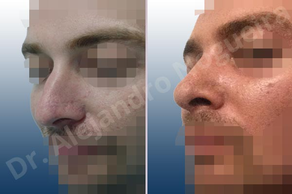 Alar flaring,Broad nose,Central European nose,Dorsum hump,Dorsum ridges,Droopy tip,Dynamic alar flaring,Jewish nose,Long upper lateral cartilages,Plunging tip deformity,Rhomboid dorsum,Thick skin nose,Closed approach incision,Dorsum hump resection,Lateral cruras cephalic resection,Medial cruras shortening resection,Nasal bones osteotomies,Triangular cartilages caudal resection - photo 3