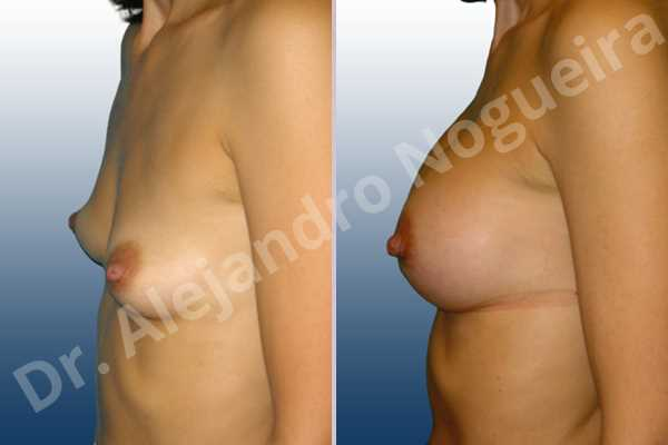 Asymmetric breasts,Cross eyed breasts,Empty breasts,Narrow breasts,Skinny breasts,Slightly saggy droopy breasts,Small breasts,Anatomical shape,Lower hemi periareolar incision,Subfascial pocket plane - photo 2