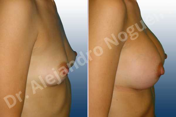 Asymmetric breasts,Cross eyed breasts,Empty breasts,Narrow breasts,Skinny breasts,Slightly saggy droopy breasts,Small breasts,Anatomical shape,Lower hemi periareolar incision,Subfascial pocket plane - photo 4