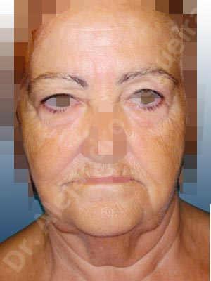 Baggy lower eyelids,Baggy upper eyelids,Deep nasolabial folds,Double chin flab,Droopy cheeks,Droopy face,Saggy jowls,Saggy neck,Saggy upper eyelids,Deep plane SMAS platysma face and neck lift,Lower eyelid fat bags resection,Transconjunctival approach incision,Upper eyelid fat bags resection,Upper eyelid skin and muscle resection