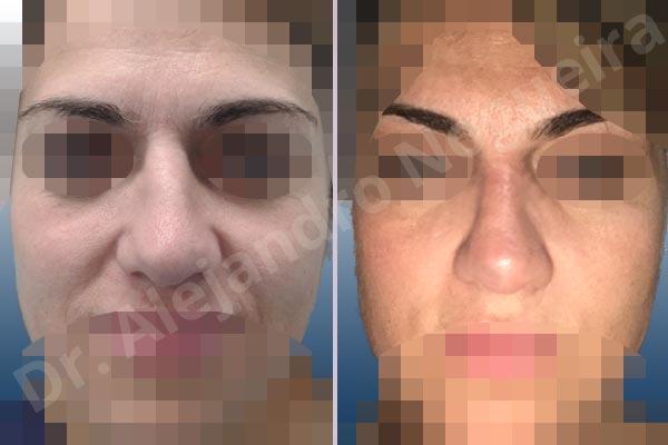 Dr  Alejandro Nogueira's Case #3CX6RKZ6