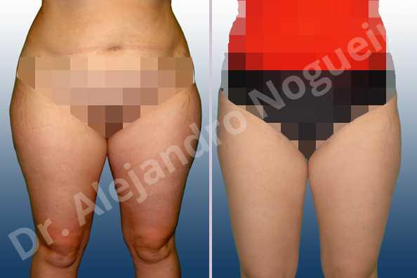 Saddle bags flab,Thigh gap flab,Tumescent liposuction