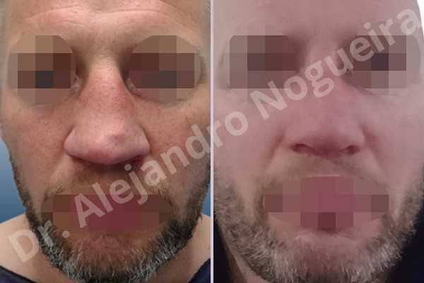 Alar flaring,Asymmetric nose,Asymmetric tip,Bifid columella,Bifid tip,Broad dorsum,Broad nose,Concave lateral cruras,Crooked nose,Crooked tip,Dorsum hump,Droopy tip,Dynamic alar flaring,Failed osteotomies,Hourglass dorsum,Inverted V deformity,Large alar cartilages,Large nose,Large nostrils,Large sills,Long nose,Nasal fibrosis,Nasal valve collapse,Overprojected tip,Pinched middle vault,Plunging tip deformity,Pointy tip,Poorly supported tip,Posttraumatic nose,Saddle nose deformity,Short septum,Sunken columella,Sunken supratip,Thin skin nose,Tip bossae,Tombstone tip deformity,Alar base resection alarplasty,Columella strut graft,Dorsocolumella graft,Dorsum hump resection,Dorsum plateau resection,Dorsum regularization,Dorsum replacement graft,Extended columella strut graft,Intercrural columella plasty sutures,Interdomal tip plasty sutures,Lateral cruras plasty sutures,Lateral cruras repositioning,Lateral cruras shortening resection,Medial cruras shortening resection,Nasal bones osteotomies,Nostril sill resection,Onlay supratip graft,Open approach incision,Rib cartilage graft harvesting,Septocolumella graft,Septum caudal extension graft,Septum replacement graft,Spreader graft,Temporalis fascia graft harvesting,Tip defatting,Tongue in groove columella setback,Transdomal tip plasty scoring,Transdomal tip plasty sutures,Triangular cartilages caudal extension graft - photo 1