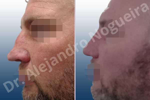 Alar flaring,Asymmetric nose,Asymmetric tip,Bifid columella,Bifid tip,Broad dorsum,Broad nose,Concave lateral cruras,Crooked nose,Crooked tip,Dorsum hump,Droopy tip,Dynamic alar flaring,Failed osteotomies,Hourglass dorsum,Inverted V deformity,Large alar cartilages,Large nose,Large nostrils,Large sills,Long nose,Nasal fibrosis,Nasal valve collapse,Overprojected tip,Pinched middle vault,Plunging tip deformity,Pointy tip,Poorly supported tip,Posttraumatic nose,Saddle nose deformity,Short septum,Sunken columella,Sunken supratip,Thin skin nose,Tip bossae,Tombstone tip deformity,Alar base resection alarplasty,Columella strut graft,Dorsocolumella graft,Dorsum hump resection,Dorsum plateau resection,Dorsum regularization,Dorsum replacement graft,Extended columella strut graft,Intercrural columella plasty sutures,Interdomal tip plasty sutures,Lateral cruras plasty sutures,Lateral cruras repositioning,Lateral cruras shortening resection,Medial cruras shortening resection,Nasal bones osteotomies,Nostril sill resection,Onlay supratip graft,Open approach incision,Rib cartilage graft harvesting,Septocolumella graft,Septum caudal extension graft,Septum replacement graft,Spreader graft,Temporalis fascia graft harvesting,Tip defatting,Tongue in groove columella setback,Transdomal tip plasty scoring,Transdomal tip plasty sutures,Triangular cartilages caudal extension graft - photo 2