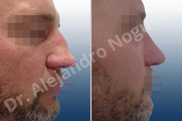 Alar flaring,Asymmetric nose,Asymmetric tip,Bifid columella,Bifid tip,Broad dorsum,Broad nose,Concave lateral cruras,Crooked nose,Crooked tip,Dorsum hump,Droopy tip,Dynamic alar flaring,Failed osteotomies,Hourglass dorsum,Inverted V deformity,Large alar cartilages,Large nose,Large nostrils,Large sills,Long nose,Nasal fibrosis,Nasal valve collapse,Overprojected tip,Pinched middle vault,Plunging tip deformity,Pointy tip,Poorly supported tip,Posttraumatic nose,Saddle nose deformity,Short septum,Sunken columella,Sunken supratip,Thin skin nose,Tip bossae,Tombstone tip deformity,Alar base resection alarplasty,Columella strut graft,Dorsocolumella graft,Dorsum hump resection,Dorsum plateau resection,Dorsum regularization,Dorsum replacement graft,Extended columella strut graft,Intercrural columella plasty sutures,Interdomal tip plasty sutures,Lateral cruras plasty sutures,Lateral cruras repositioning,Lateral cruras shortening resection,Medial cruras shortening resection,Nasal bones osteotomies,Nostril sill resection,Onlay supratip graft,Open approach incision,Rib cartilage graft harvesting,Septocolumella graft,Septum caudal extension graft,Septum replacement graft,Spreader graft,Temporalis fascia graft harvesting,Tip defatting,Tongue in groove columella setback,Transdomal tip plasty scoring,Transdomal tip plasty sutures,Triangular cartilages caudal extension graft - photo 5