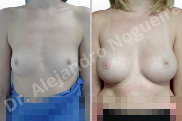 Asymmetric breasts,Cross eyed breasts,Empty breasts,Lateral breasts,Skinny breasts,Small breasts,Too far apart wide cleavage breasts,Wide breasts,Anatomical shape,Inframammary incision,Subfascial pocket plane - photo 1
