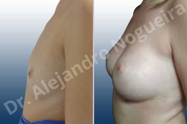 Asymmetric breasts,Cross eyed breasts,Empty breasts,Lateral breasts,Skinny breasts,Small breasts,Too far apart wide cleavage breasts,Wide breasts,Anatomical shape,Inframammary incision,Subfascial pocket plane - photo 2