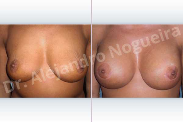 Asymmetric breasts,Breast tissue bottoming out,Cross eyed breasts,Empty breasts,Failed breast reduction,Pendulous breasts,Slightly saggy droopy breasts,Small breasts,Wide breasts,Anatomical shape,Anchor incision,Extra large size,Lower hemi periareolar incision,Subfascial pocket plane - photo 1
