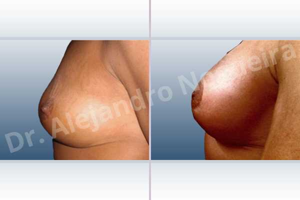 Asymmetric breasts,Breast tissue bottoming out,Cross eyed breasts,Empty breasts,Failed breast reduction,Pendulous breasts,Slightly saggy droopy breasts,Small breasts,Wide breasts,Anatomical shape,Anchor incision,Extra large size,Lower hemi periareolar incision,Subfascial pocket plane - photo 2