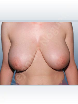 Breast tissues symmastia uniboob,Moderately large breasts,Severely saggy droopy breasts,Tuberous breasts,Anchor incision,Superior pedicle