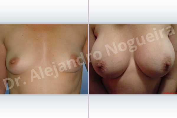 Before & After Case 3ZMMT64P