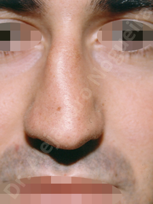 Asymmetric nose,Asymmetric tip,Crooked nose,Crooked septum,Crooked tip,Dorsum hump,Droopy tip,Irregular dorsum,Large alar cartilages,Large nose,Long nose,Long septum,Long upper lateral cartilages,Mediterranean nose,Nasal airway obstruction,Plunging tip deformity,Poorly supported tip,Posttraumatic nose,Thick skin nose,Caudal septum resection,Closed approach incision,Dorsum hump resection,Dorsum regularization,Lateral cruras cephalic resection,Nasal bones osteotomies,Septum bone realignment,Septum bone resection,Septum cartilage realignment,Septum cartilage resection,Triangular cartilages caudal resection