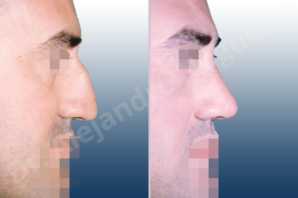 Before & After Case 4CET69HR