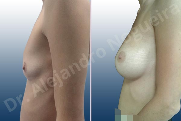 Asymmetric breasts,Cross eyed breasts,Empty breasts,Narrow breasts,Pigeon chest,Skinny breasts,Slightly saggy droopy breasts,Small breasts,Too far apart wide cleavage breasts,Anatomical shape,Inframammary incision,Subfascial pocket plane - photo 2