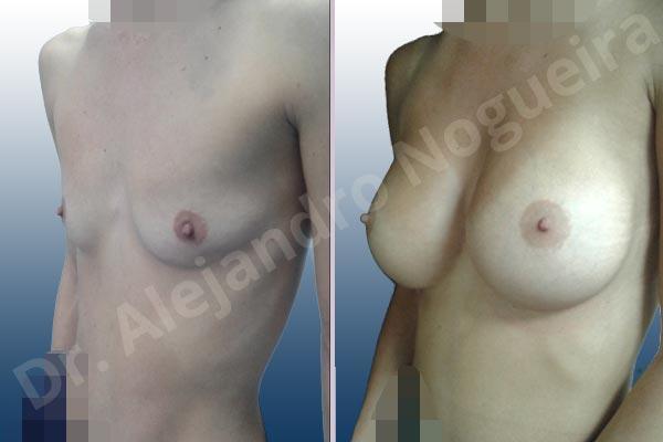 Before & After Case 4G7ENV8D