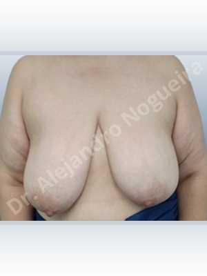 Asymmetric breasts,Breast tissue bottoming out,Breast tissues symmastia uniboob,Empty breasts,Extremely saggy droopy breasts,Large areolas,Pendulous breasts,Severely large breasts,Too far apart wide cleavage breasts,Wide breasts,Tuberous breasts,Anatomical shape,Anchor incision,Areola reduction,Double vertical pedicle,Subfascial pocket plane