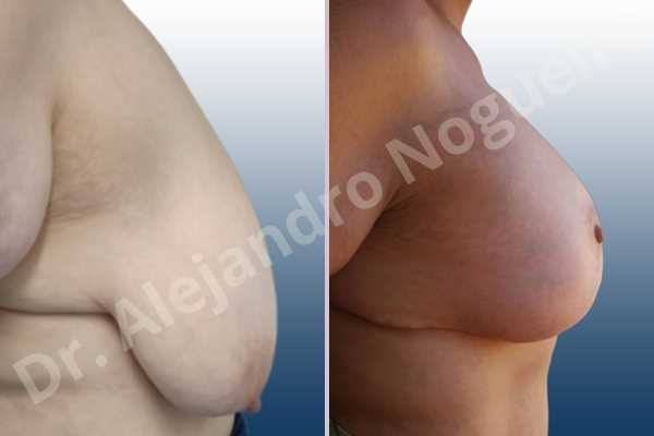 Asymmetric breasts,Breast tissue bottoming out,Breast tissues symmastia uniboob,Empty breasts,Extremely saggy droopy breasts,Large areolas,Pendulous breasts,Severely large breasts,Too far apart wide cleavage breasts,Wide breasts,Tuberous breasts,Anatomical shape,Anchor incision,Areola reduction,Double vertical pedicle,Subfascial pocket plane - photo 4