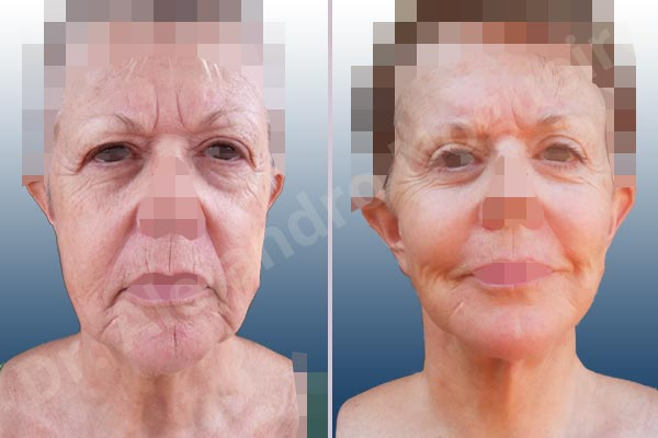 Baggy lower eyelids,Baggy upper eyelids,Cobra neck deformity,Deep nasolabial folds,Droopy cheeks,Droopy eyebrows,Droopy face,Droopy forehead,Saggy jowls,Saggy neck,Saggy upper eyelids,Upper eyelids ptosis,Deep plane SMAS platysma face and neck lift,Lower eyelid fat bags resection,Short temporal incisions supraperiosteal extended lift of the upper two thirds of the face,Transconjunctival approach incision,Upper eyelid fat bags resection,Upper eyelid skin and muscle resection