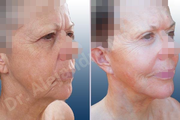 Before & After Case 4I97F4HV